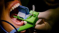 Posicionador Radiográfico Odontológico desenvolvido pela F.Odontologia. Foto: Cecília Bastos/USP Imagem