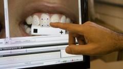 Fluorescência dental
