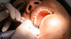 tendimento odontológico. Foto: Cecília Bastos/USP Imagem